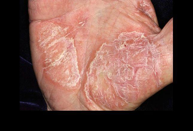 pikkelysömör gyógyult nagymama vörös foltok jelentek meg a lábakon és égnek