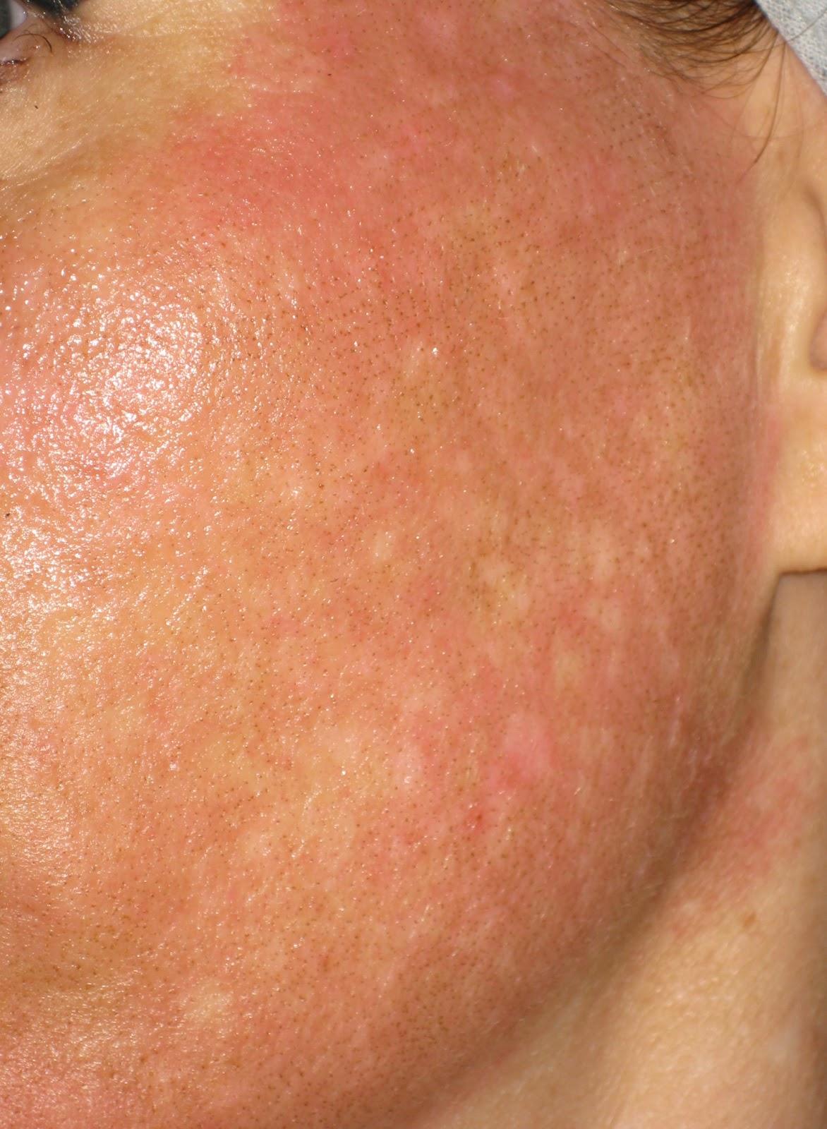 A psoriasis lézeres kezelése - genetech.hu
