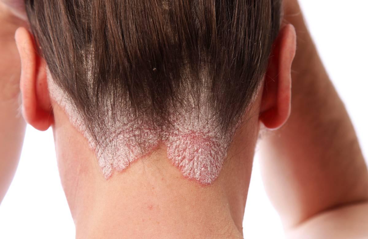 fejbőr psoriasis kezelése fotó