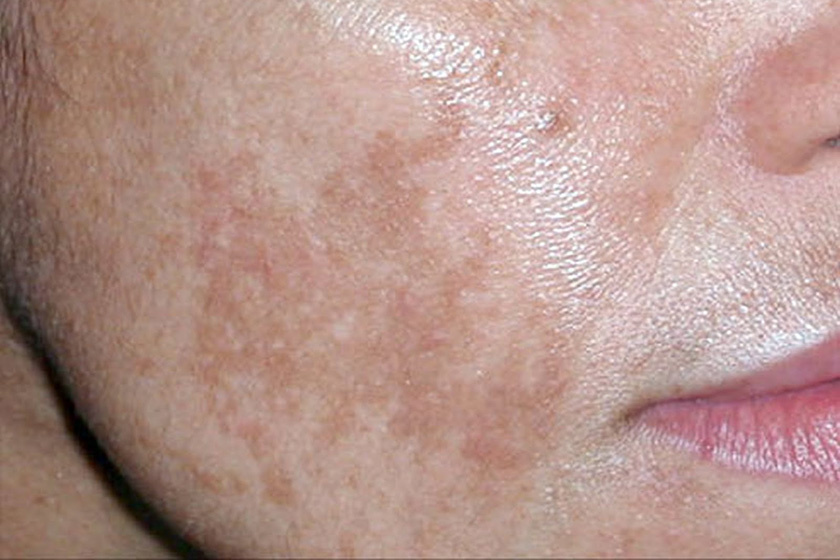 Jak na pigmentové skvrny | Hyperpigmentace | genetech.hu