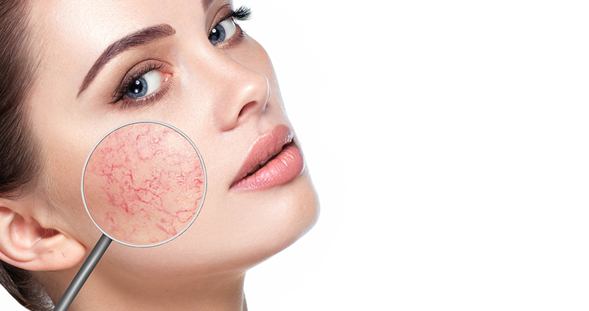 fogkrém vörös foltok az arcon körömvirág kenőcs homeopátiás pikkelysömör