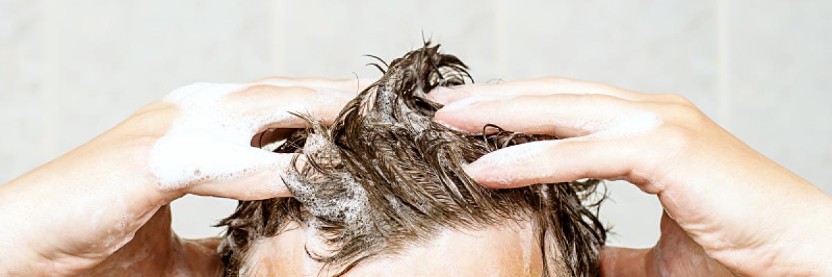Nodé K Sampon | Hajkezelés száraz fejbőrű, szeborreás dermatitisztől szenvedő páciensek részére.