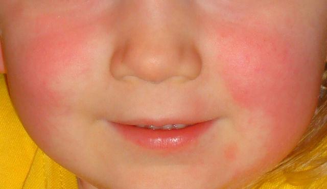 hányás után vörös foltok az arcon iratkozzon fel a pikkelysömör kezelésére