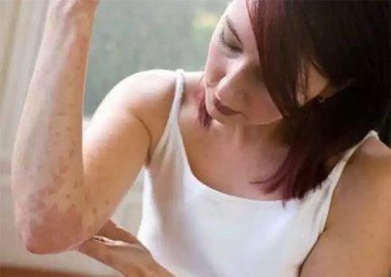 hogyan kell kezelni a pikkelysmr foltot