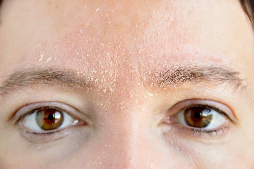 hogyan lehet eltávolítani a vörös foltokat az arcon a fotón kezét vörös foltok és hámlás borítja