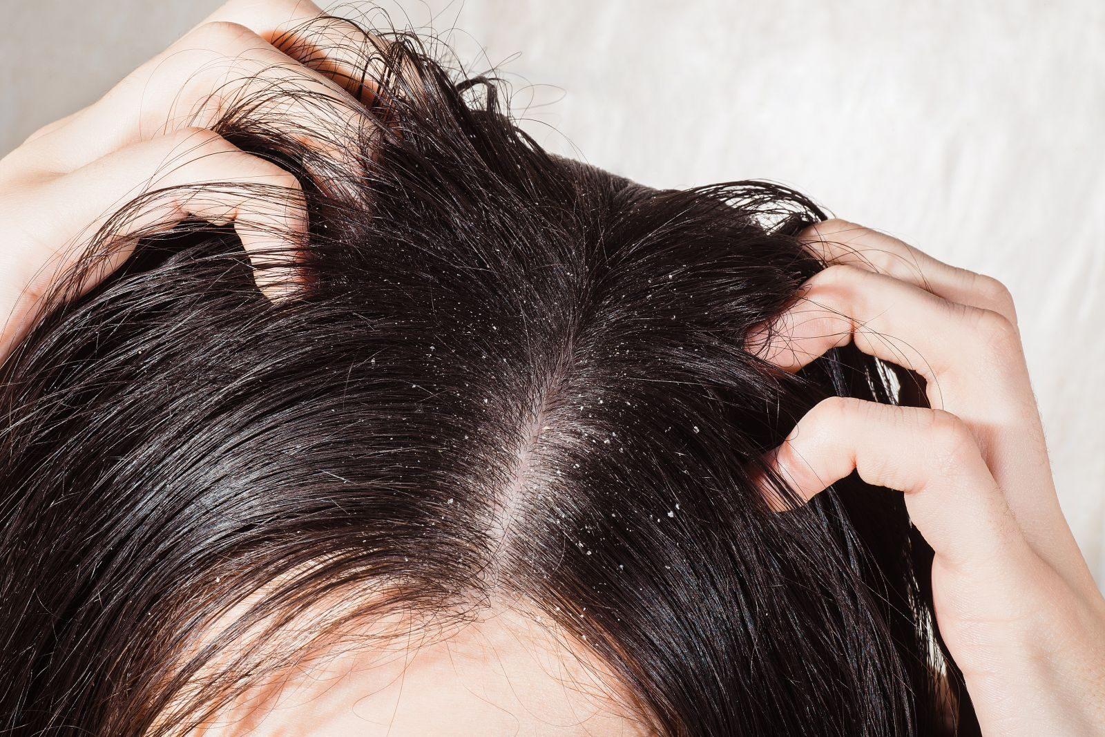 hogyan lehet gyógyítani a korpát a fej pikkelysömörén vörös, nedves foltok a fejbőrön