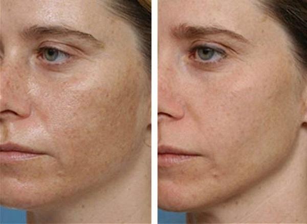 hogyan lehet otthon eltávolítani a vörös foltokat az arcról Philips lámpa pikkelysömör kezelésére