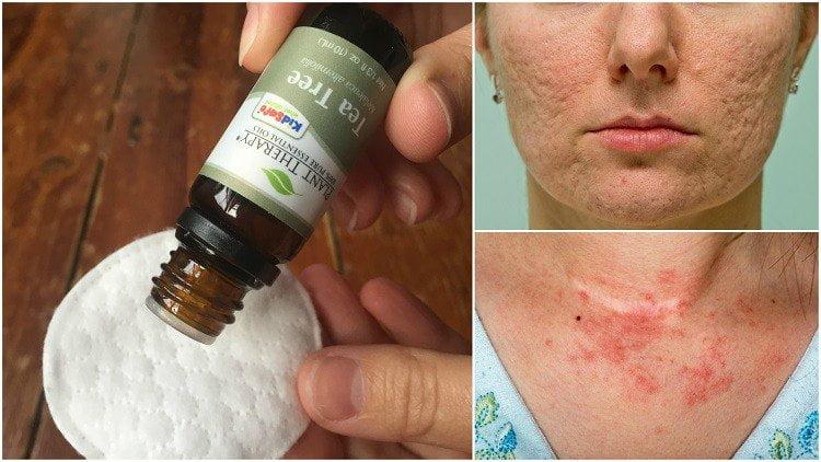 hogyan lehet pikkelysömör kezelésére teafaolaj vörös foltok a bőrön, viszkető és pelyhes