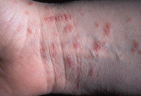 kiütések a kezek bőrén vörös foltok formájában, viszketéssel