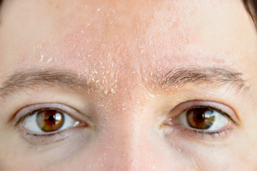 mi segít az arcon lévő vörös foltokban