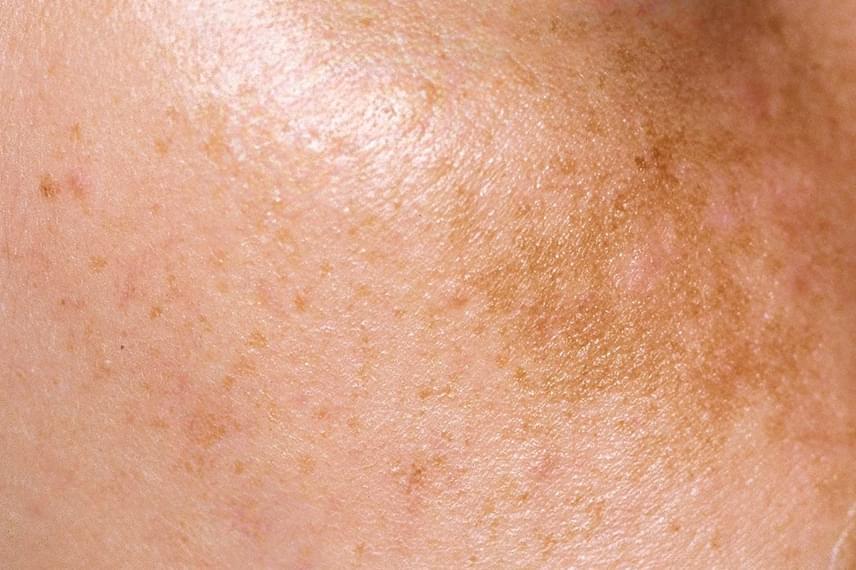 ráncos vörös folt a bőrön bőr az arcon vörös foltokkal és hámlással