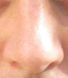 népi gyógymódok vörös foltok az arcon