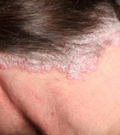 pikkelysömör a fejen, hogyan lehet gyorsan meggyógyítani vörös foltok viszkető kezek duzzanata