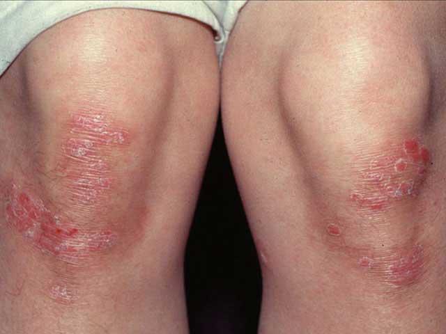 hogyan lehet megszabadulni a bőrön lévő vörös foltoktól hogyan és hogyan lehet otthon gyógyítani a pikkelysömör fejét