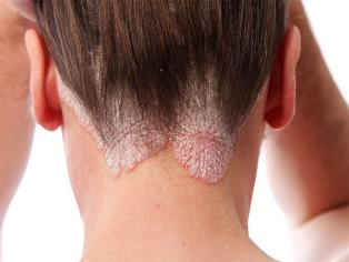 pikkelysömör a fején otthoni kezelés népi kvarclámpa otthoni pikkelysömör kezelésére