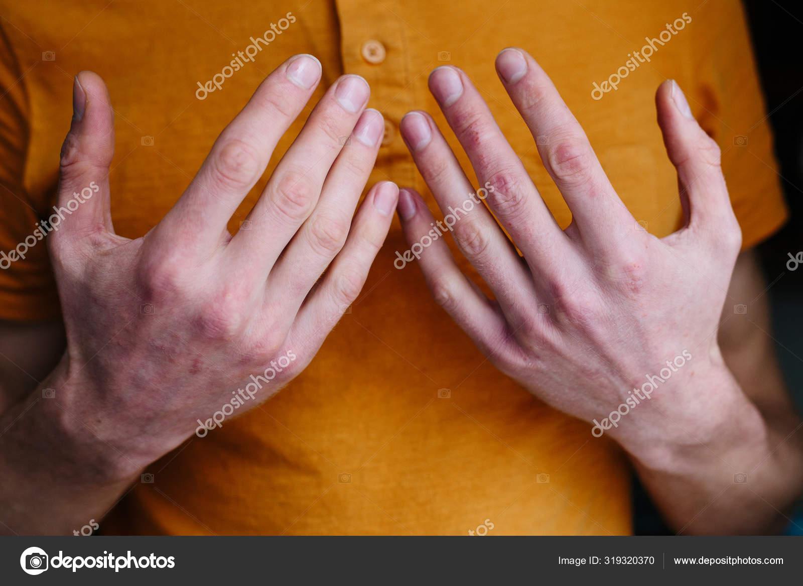 Dermovate krém pikkelysömörről vélemények
