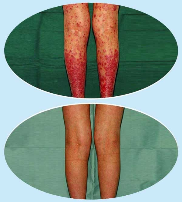 pikkelysömör kezelése holt tengeri termékekkel vörös foltok a lábakon és a láb duzzanata