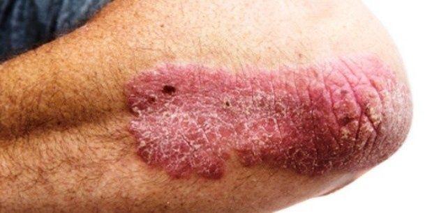 pikkelysömör kezelése időseknél vörös folt az arcon idegektől