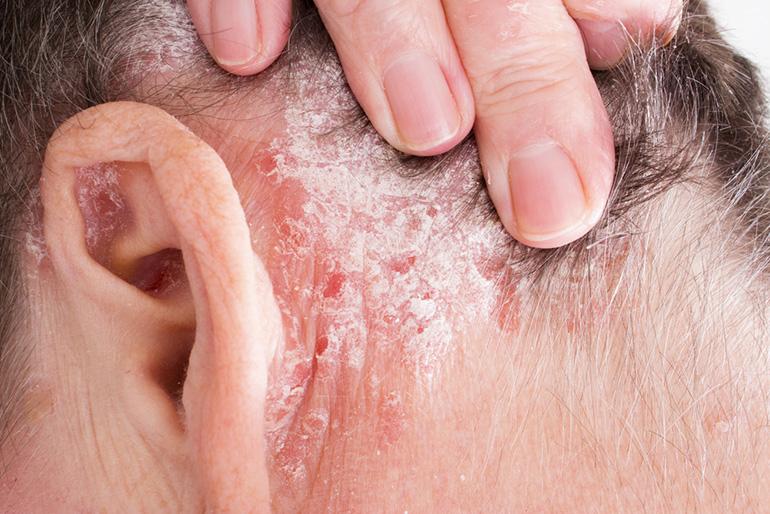 pikkelysömör kezelésére a fejbőrön