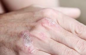 pikkelysömör tüneteinek kezelési módszerei a lábán egy vörös folt viszket, mint kezelni