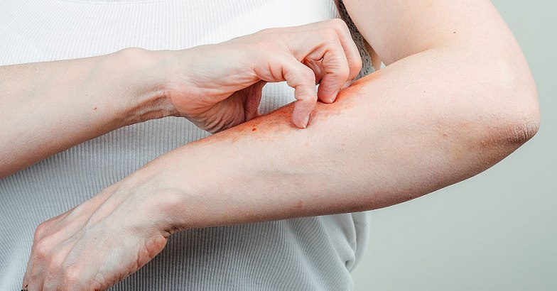darsonval pikkelysömör kezelésére