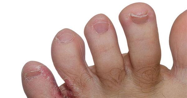 ami piros foltokat jelent a kezeken