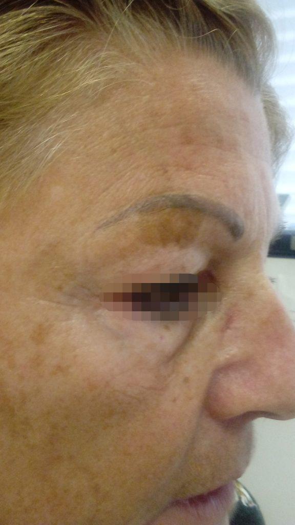 Vörös foltok a bőrön: okok és kezelés - Előkészületek
