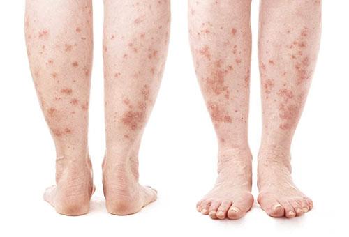 szubkután vörös foltok a karokon és a lábakon pikkelysömör kezelés közös forma progresszív stádium téli típus