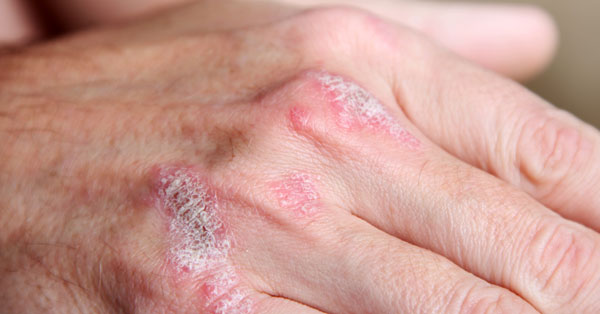 piros foltok a kéz hátulján fotó vörös, rögös folt a bőrön viszket