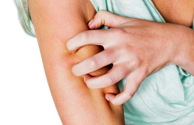 terhessg alatt hogyan kell kezelni a pikkelysmr miután eltalált egy piros foltot a lábán