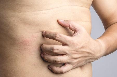 krém - viasz egészséges a pikkelysömörtől fotó
