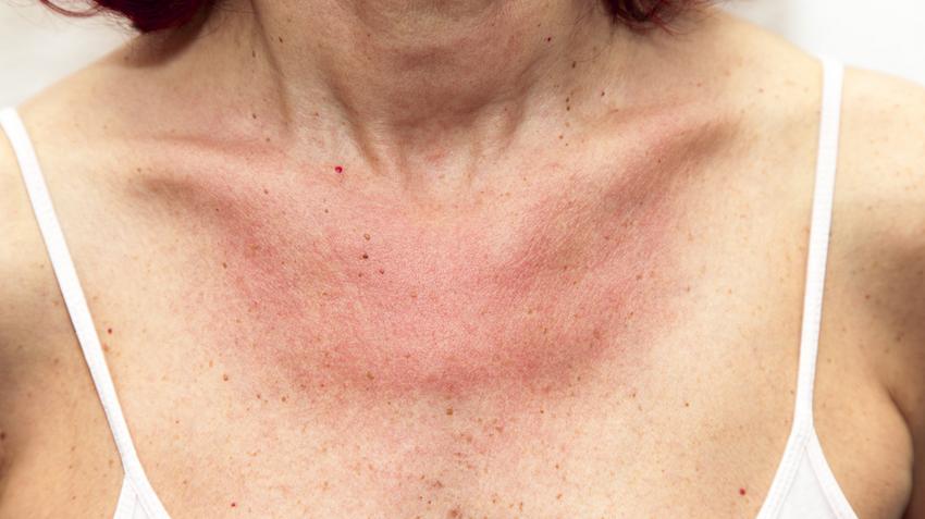 vörös foltok a has bőrén viszketnek