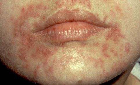 vörös foltok az arcon hámló kezelés fejbőr pikkelysömör kenőcs