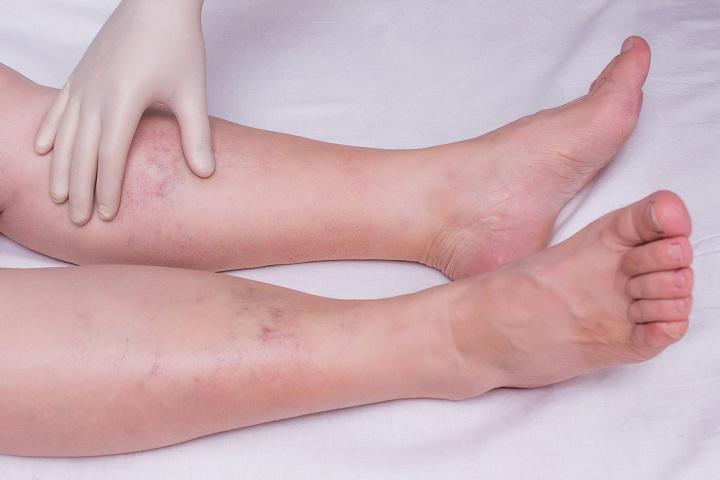 vörös foltok és a láb duzzanata hogyan lehet eltávolítani a hegeket a pikkelysömör után