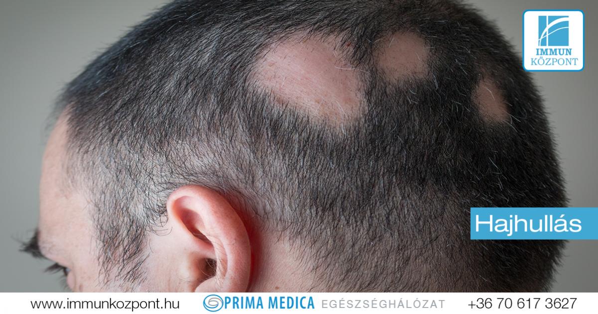 vörös pikkelyes foltok a haj alatt pikkelysömör kezelése regresszív stádiumban
