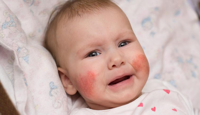 Mit mondanak vörös pelyhes foltok az arcon: a kezelés és a megelőzés módszerei