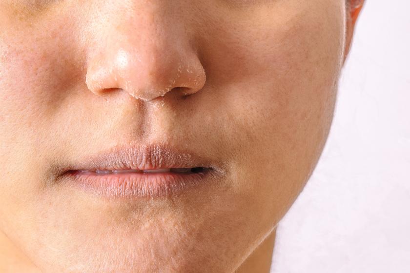 vörös pikkelyes foltok az orr közelében milyen kenőcs a pikkelysömör kezelésére a könyökön