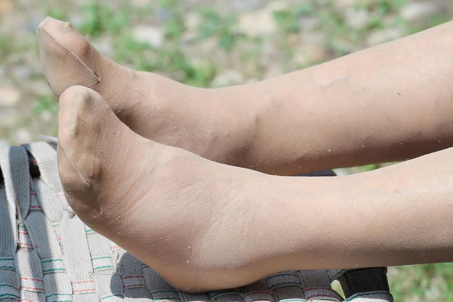 egy piros folt pattant fel a lábán, mit kell tennie