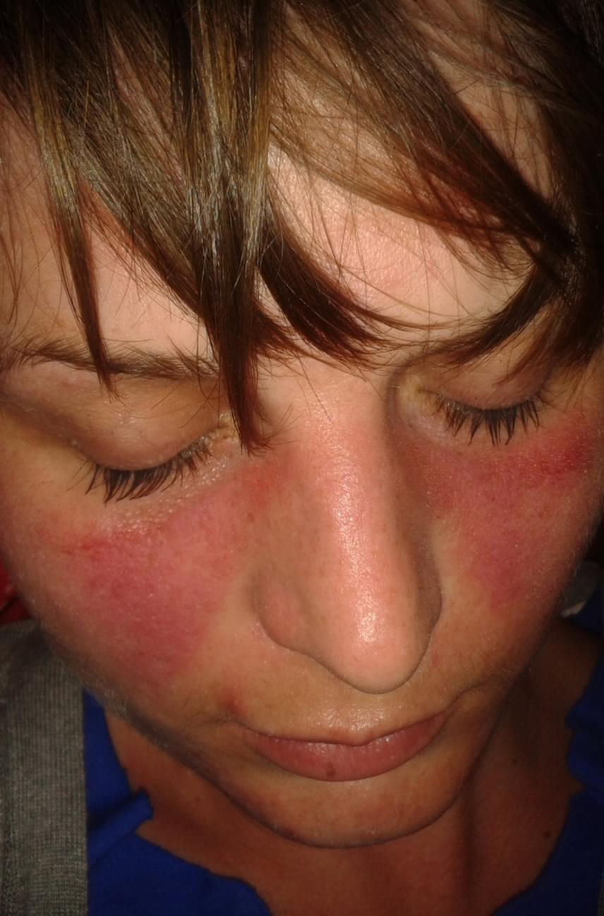 egészség vörös foltok az arcon