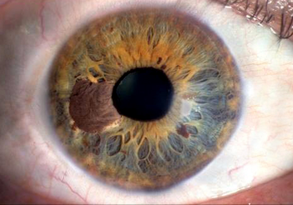 Vörös foltok a szemhéjon - Szemhéjgyulladás