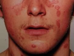 hogyan kell kezelni a pikkelysmr az arcon