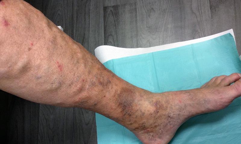 az alsó lábszáron piros folt viszket vitamin krém pikkelysömörhöz