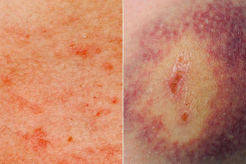 vörös foltok a leégés utáni kezelés után régi pikkelysömör kezelése