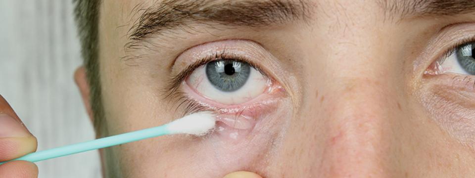 a szem körüli pikkelysömör kezelése