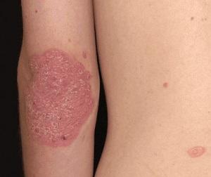 vörös foltok az arcon pattanások után pikkelysömör kezelése lvivben