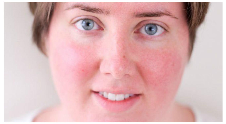 a fejbőr pikkelysömörének komplex kezelése kezelés elecampane pikkelysömör vélemények