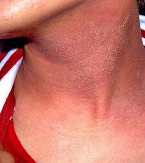 a nyakon lévő foltok vörös pikkelyesek