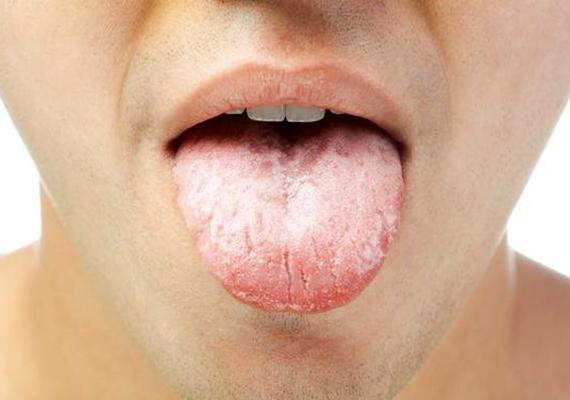 a rossz lehelet okozza a nyelv lepedékét