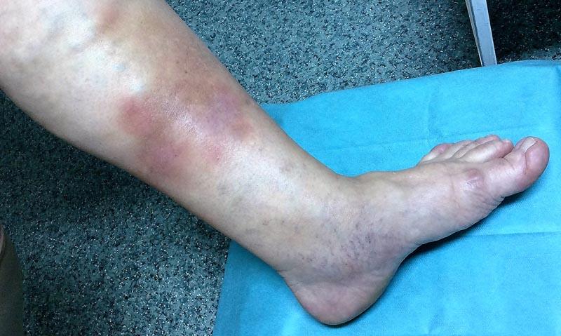 vörös foltok a lábakon, duzzadt lábak vörös folt a tömörödéssel a lábán viszket