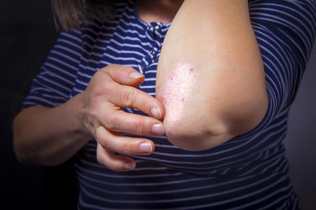 babérlevél a pikkelysömör kezelésében puva terápia a pikkelysömör felülvizsgálatában